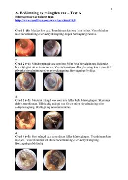 malign extern otit