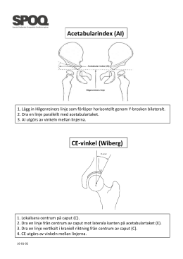 AI (Acetabular Index) och CE