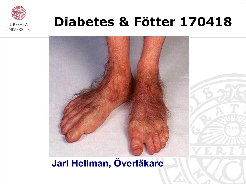 diabetes och fötter